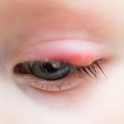 Eye Care Eye Infections Dry Eyes Causes And Treatments Using Comprehensive Eye Exams  In Houston Ella Eyes